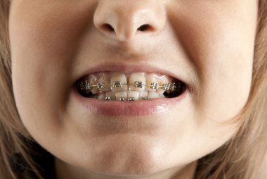 Girl smiles with bracket on teeth