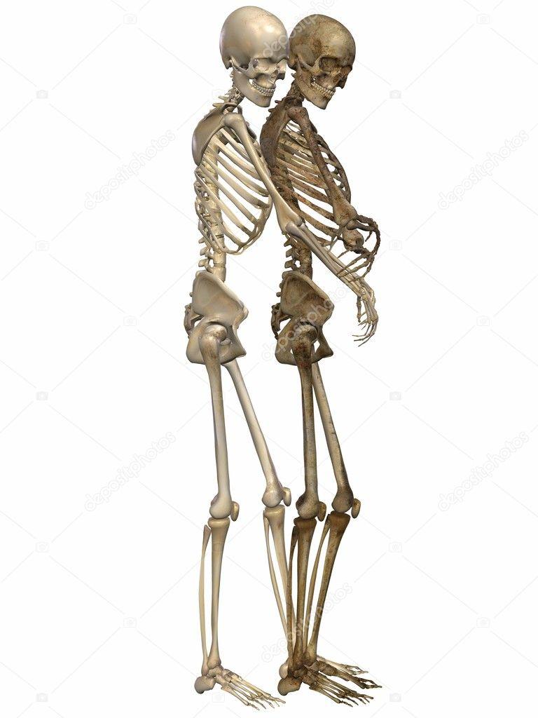 в свердловской области скелет с тремя фотографиями укусе насекомое выделяет