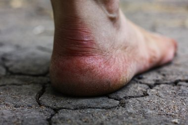 Human foot with cracks