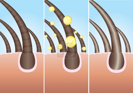 Illustration for Illustration of three phase of hair cure, vector - Royalty Free Image