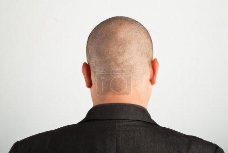 Photo pour L'arrière de la tête de mâle. - image libre de droit