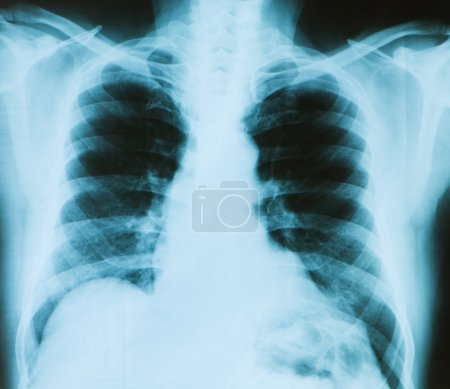 X-ray image of chest bones of adult