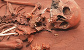 Skeleton remains