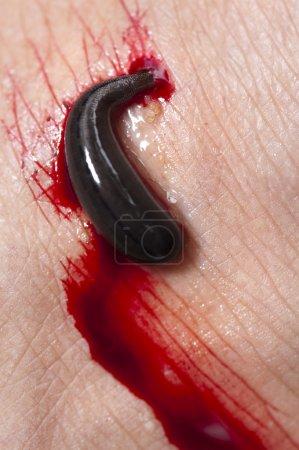 Foto de Sanguijuela chupa sangre de una pierna en la selva tropical, Malasia, asia. - Imagen libre de derechos