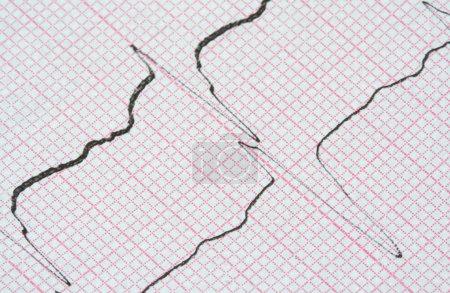 ECG graph...