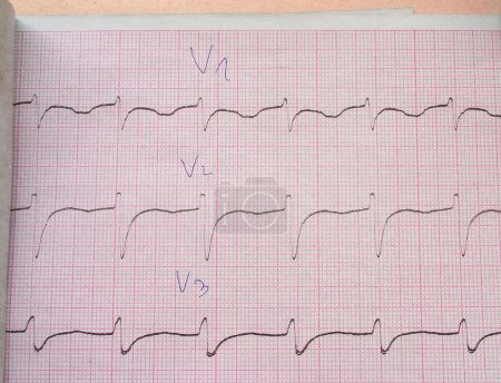 Close-up of ECG graph with docror's notes...