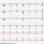 An example of a normal 12-lead sinus rhythm electr...